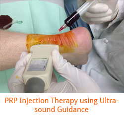 PRP Injection Therapy using Ultrasound Guidance.