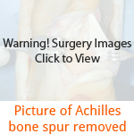 Picture of Achilles bone spur removed